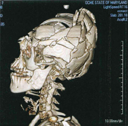 There will be a 3-day Advance Forensic Imaging Course May 9-11 at the Forensic Medicine Center Baltimore, Maryland