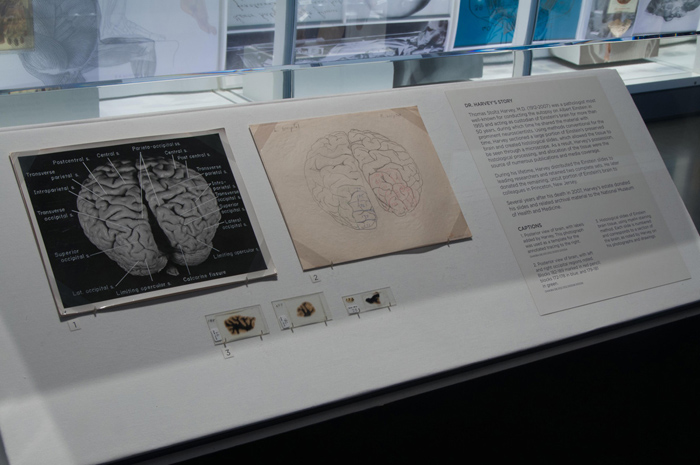 Photos, hand-drawn maps and glass slides show different views of the brain of Albert Einstein