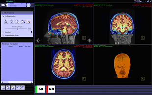 Compiled brain images created through XIP application
